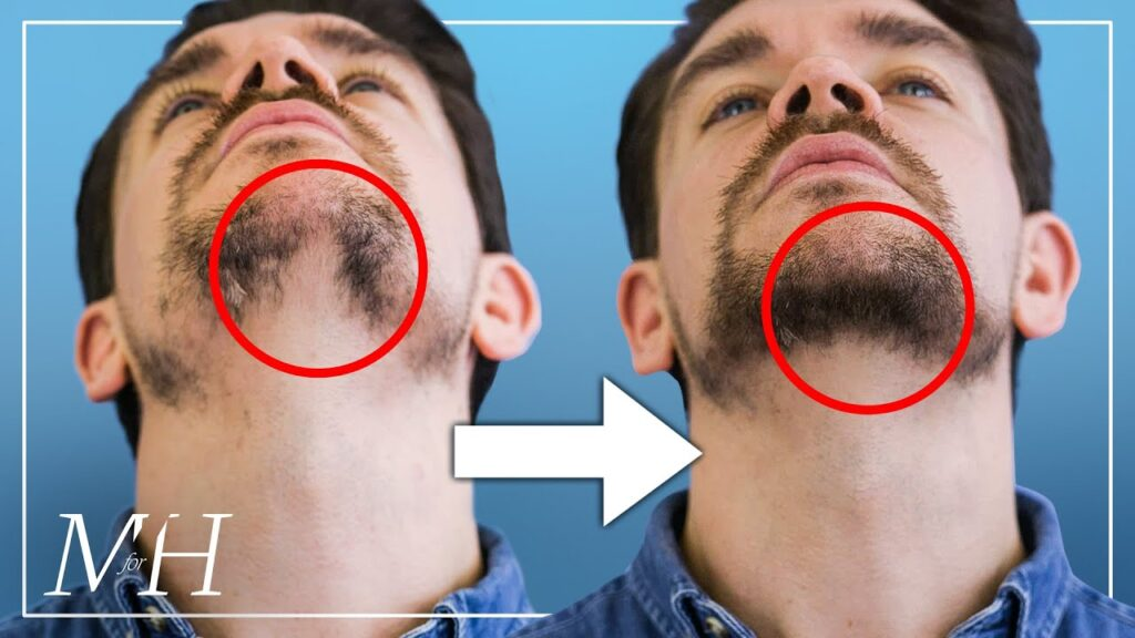 How-To-Fix-Your-Patchy-Beard…-Fast
